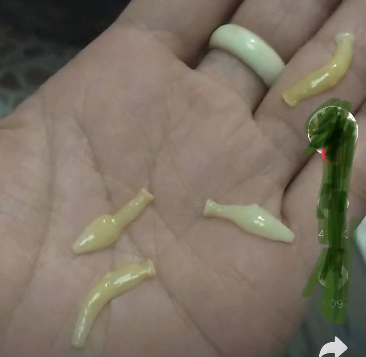 ศูนย์วิจัยฯเผยภาพ ปล้องสุกของพยาธิตืด ออกมาจากผู้ที่กิน ลาบก้อยวัวดิบ